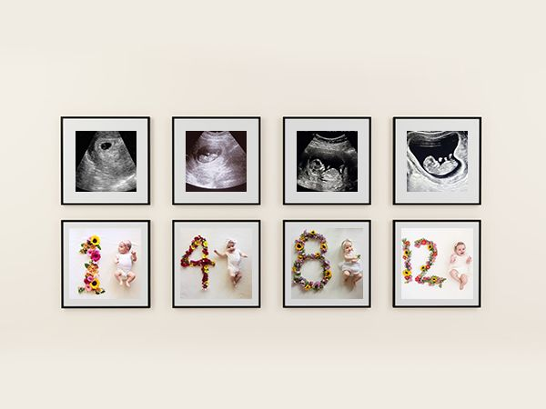 Baby ultrasound pictures